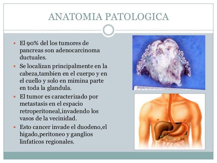 Pruebas funcionales pancreaticas y cancer de pancreas