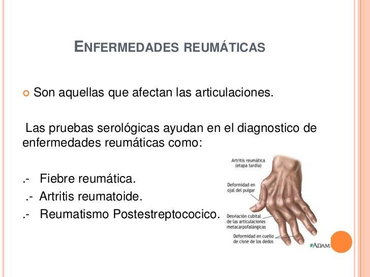 Pruebas inmunológicas Slide 2