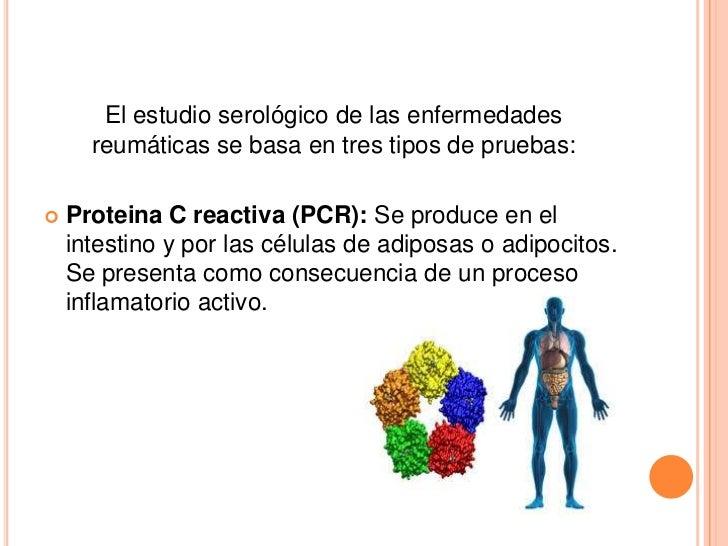 Pruebas inmunológicas Slide 3