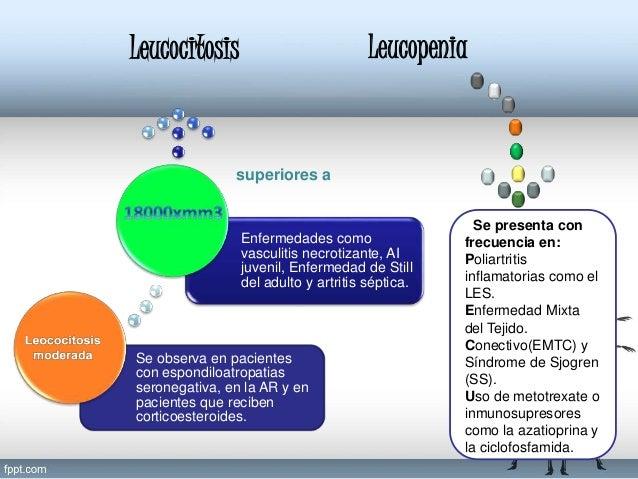 En casos similares a los descritos en leucopenia. Uso de fármacos. Es frecuente en la AR activa, se correlaciona con el gr...