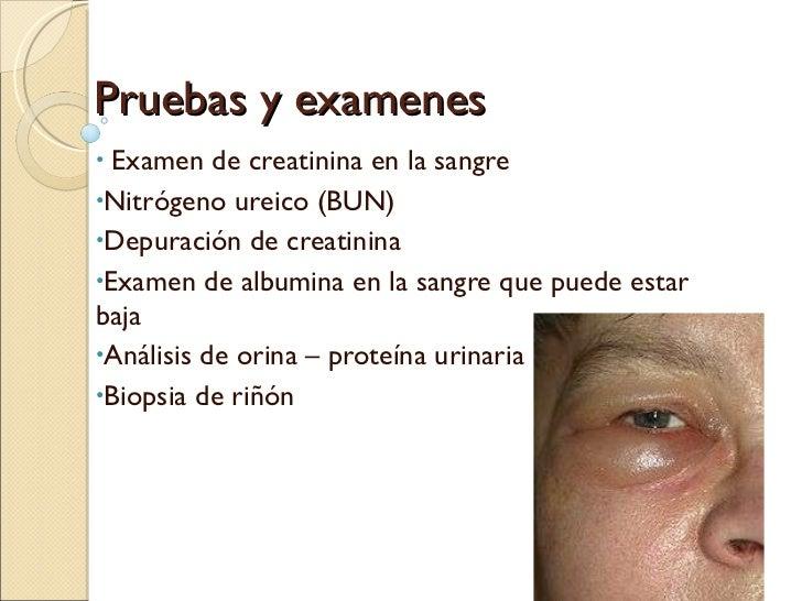 Pruebas y examenes de sindrome nefritico y nefrotico Slide 2