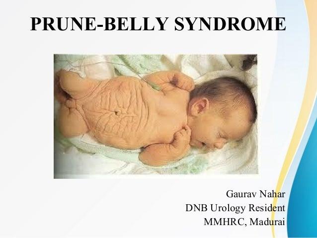 PRUNE-BELLY SYNDROME Gaurav Nahar DNB Urology Resident MMHRC, Madurai