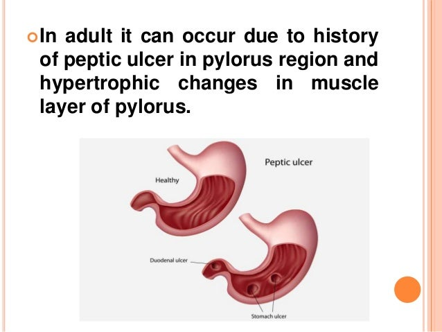 PYLORIC STENOSIS IN ADULTS PDF DOWNLOAD