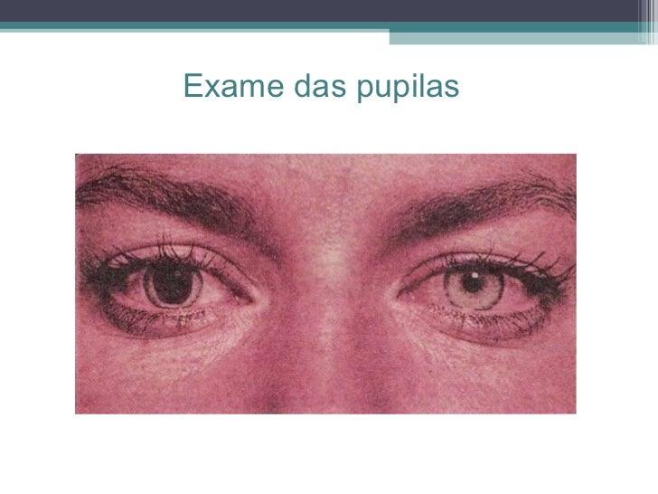 Exame das pupilas