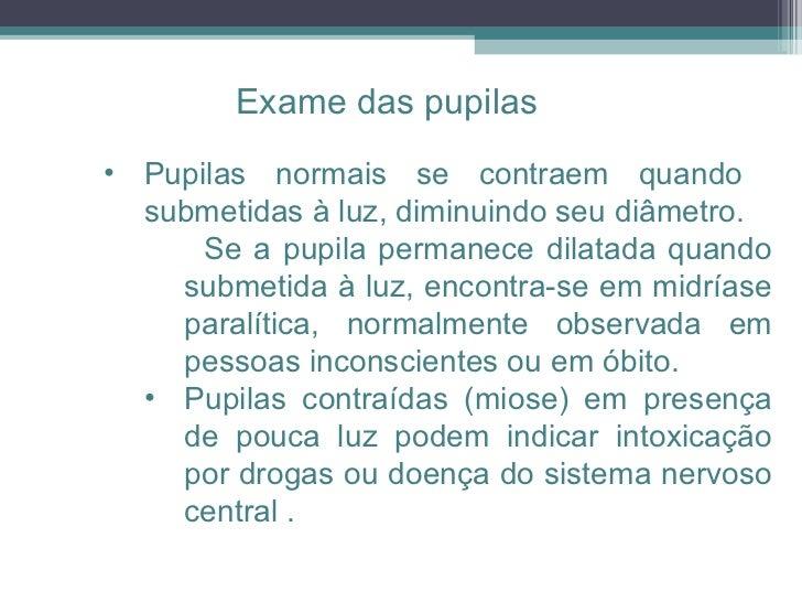 <ul><ul><ul><li>Pupilas normais se contraem quando  submetidas à luz, diminuindo seu diâmetro.  </li></ul></ul></ul><ul><u...