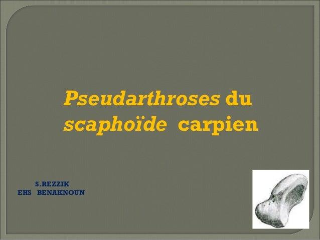 Pseudarthroses du scaphoïde carpien S.REZZIK EHS BENAKNOUN