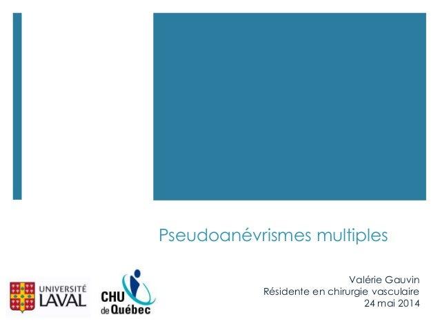 Pseudoanévrismes multiples Valérie Gauvin Résidente en chirurgie vasculaire 24 mai 2014