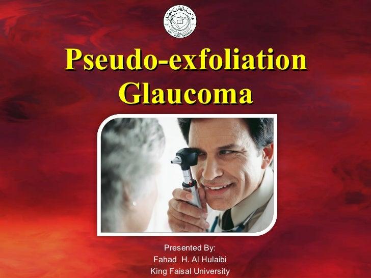Pseudo-exfoliation Glaucoma Presented By: Fahad  H. Al Hulaibi King Faisal University