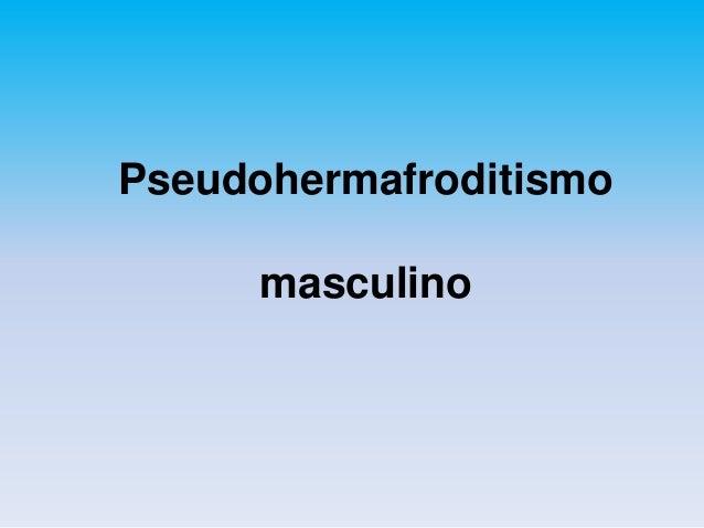 Pseudohermafroditismo  masculino