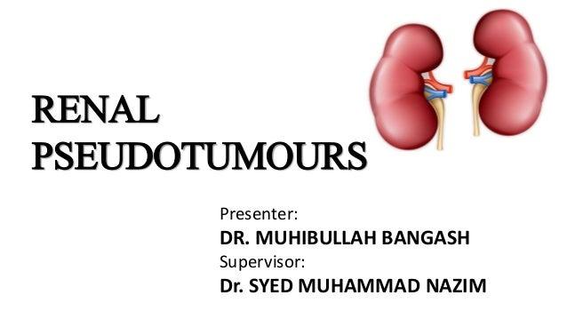 RENAL PSEUDOTUMOURS Presenter: DR. MUHIBULLAH BANGASH Supervisor: Dr. SYED MUHAMMAD NAZIM