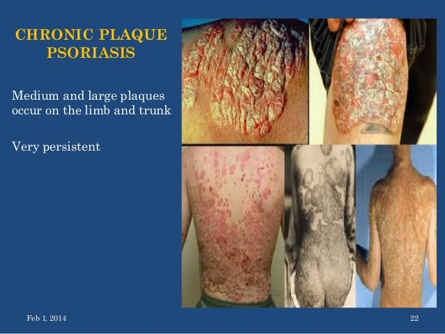 psoriasis nagel behandlung arthropathie.jpg