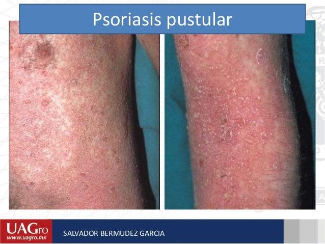 El tratamiento de la psoriasis por la medicina asd 2