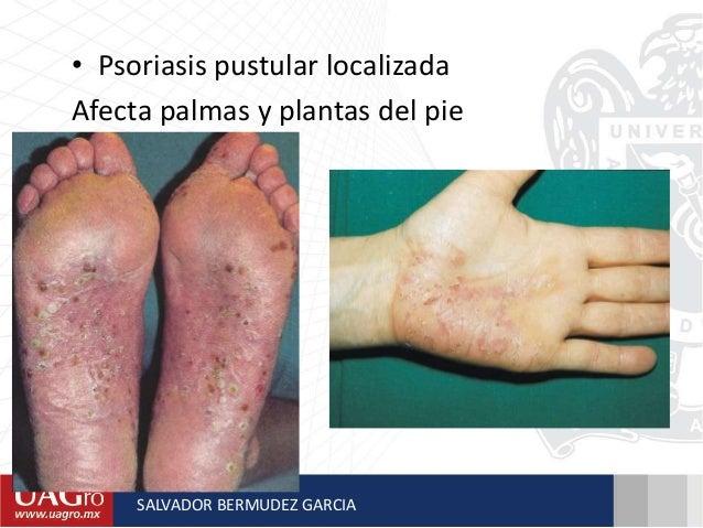 La eccema sobre las plantas de los pies que curar