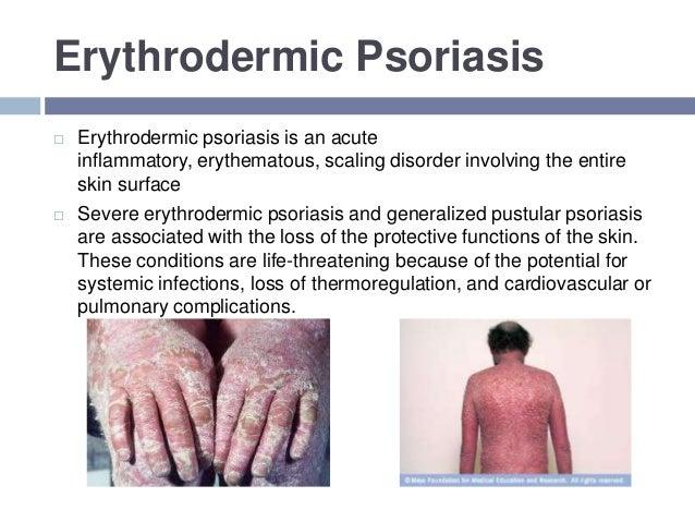 creme morgendämmerung von psoriasis aus thailand.jpg