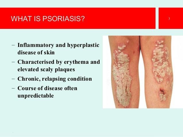 Psoriasis-The best Presentation Slide 3