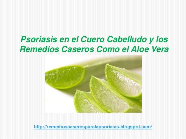 Psoriasis en el Cuero Cabelludo y losRemedios Caseros Como el Aloe Verahttp://remedioscaserosparalapsoriasis.blogspot.com/