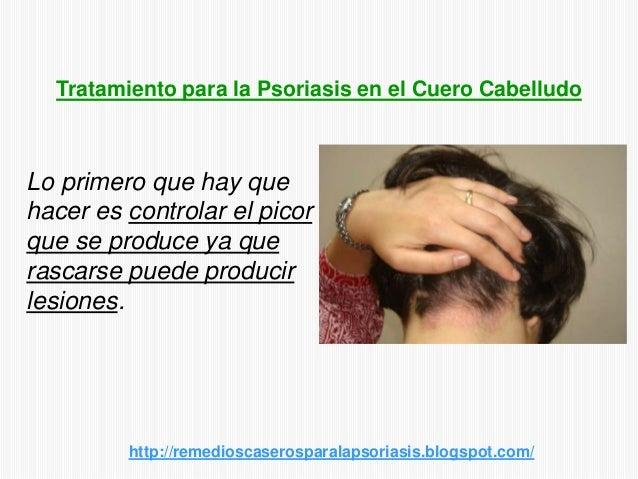Lo primero que hay quehacer es controlar el picorque se produce ya querascarse puede producirlesiones.http://remedioscaser...