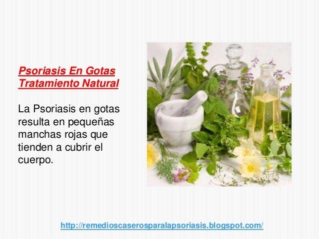 Psoriasis En GotasTratamiento NaturalLa Psoriasis en gotasresulta en pequeñasmanchas rojas quetienden a cubrir elcuerpo.ht...