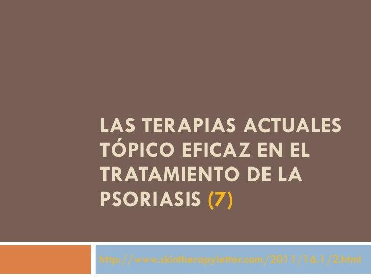 Las causas de la psoriasis sobre la cabeza y su tratamiento