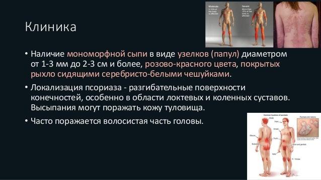Первичная консультация для пациентов с проблемой псориаза 1500 рублей