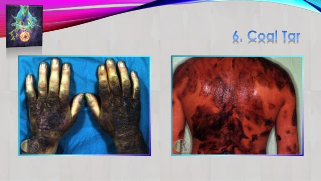 Psoriasis part2