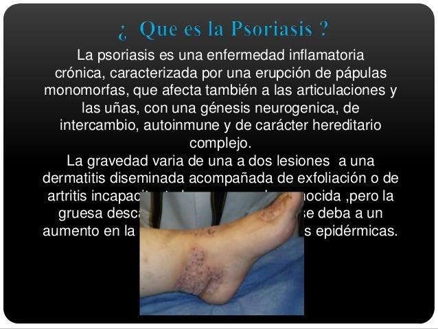 Como coger por la psoriasis