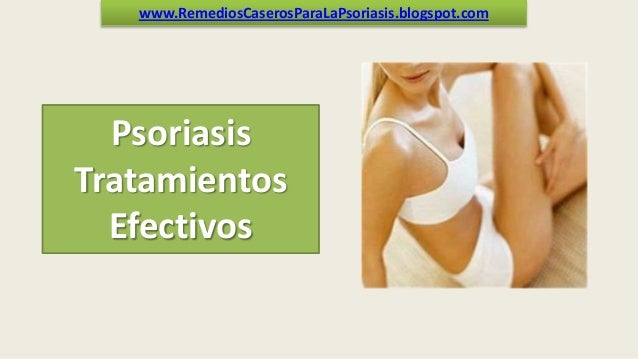 www.RemediosCaserosParaLaPsoriasis.blogspot.com  Psoriasis Tratamientos Efectivos