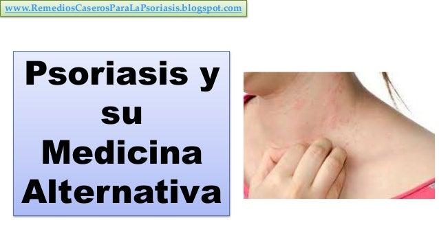 Psoriasis y su Medicina Alternativa www.RemediosCaserosParaLaPsoriasis.blogspot.com