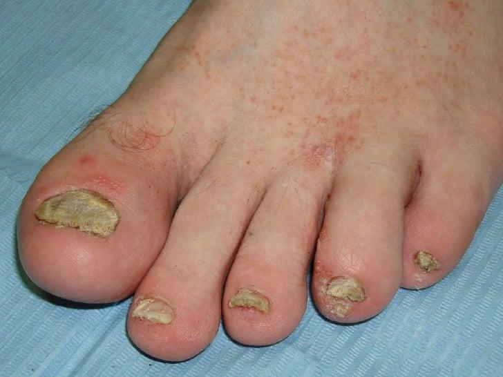 Как проявляется псориаз на ногтях