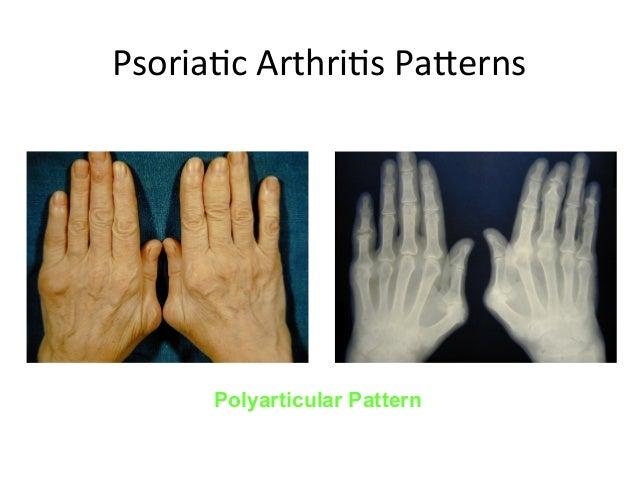 Image Result For Psoriatic Arthritis