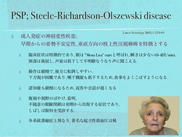 "PSP; Steele-Richardson-Olszewski disease 成人発症の神経変性疾患; 早期からの姿勢不安定性, 垂直方向の核上性注視麻痺を特徴とする 臨床症状は特徴的であり, 眼は ""Mona Lisa"" stareと呼ば..."