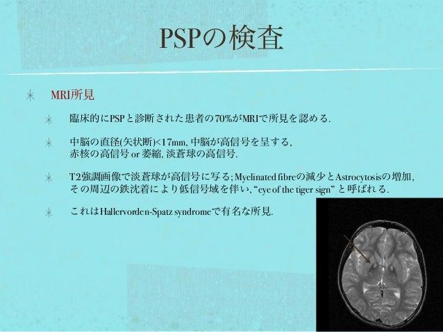 PSPの検査 MRI所見 臨床的にPSPと診断された患者の70%がMRIで所見を認める. 中脳の直径(矢状断)<17mm, 中脳が高信号を呈する, 赤核の高信号 or 萎縮, 淡蒼球の高信号. T2強調画像で淡蒼球が高信号に写る; Myelin...