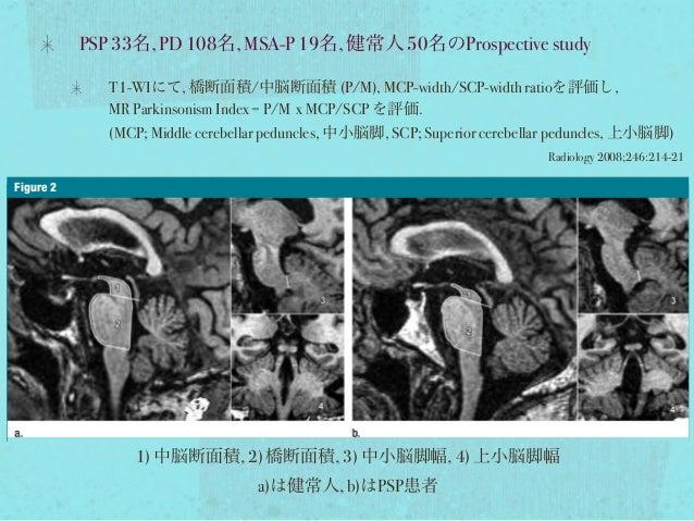 PSP 33名, PD 108名, MSA-P 19名, 健常人 50名のProspective study T1-WIにて, 橋断面積/中脳断面積 (P/M), MCP-width/SCP-width ratioを評価し, MR Parkin...