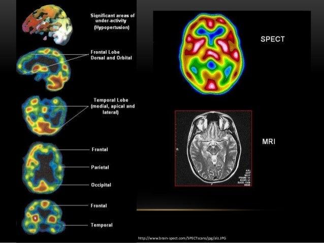 Schizophrenia brain scan