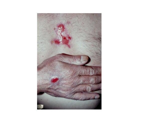 Psychiatry and skin disease