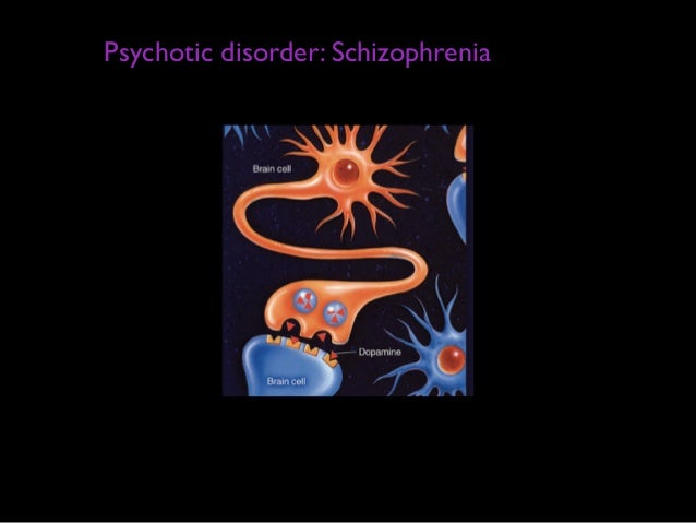 biological causes of schizophrenia essay