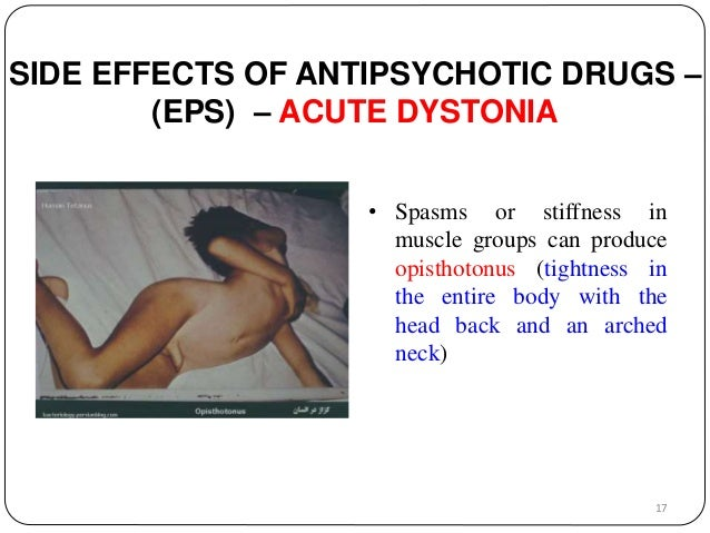 SIDE EFFECTS OF ANTIPSYCHOTIC DRUGS –  (EPS) – ACUTE DYSTONIA  • Spasms or stiffness in  muscle groups can produce  opisth...