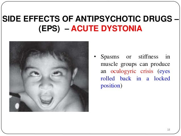 SIDE EFFECTS OF ANTIPSYCHOTIC DRUGS –  (EPS) – ACUTE DYSTONIA  • Spasms or stiffness in  muscle groups can produce  an ocu...
