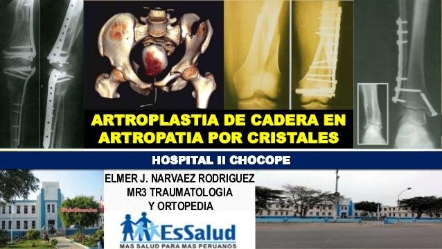 ARTROPLASTIA DE CADERA EN ARTROPATIA POR CRISTALES ELMER J. NARVAEZ RODRIGUEZ MR3 TRAUMATOLOGIA Y ORTOPEDIA
