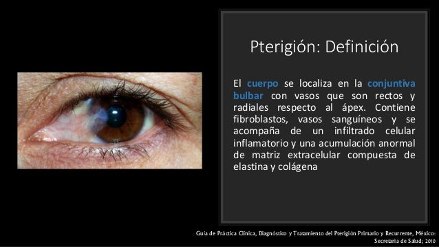 Cirugia De Pterigion Epub Download
