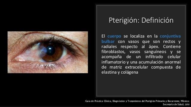 Cirugia De Pterigion Epub Download