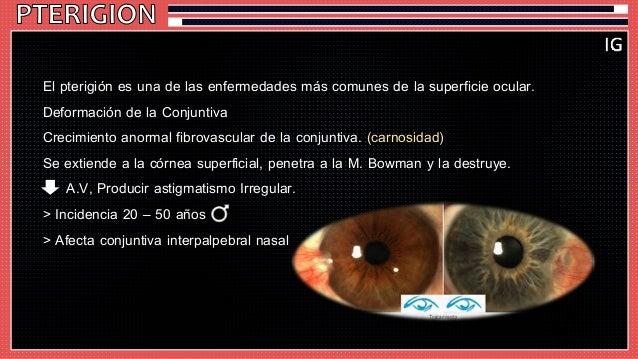El pterigión es una de las enfermedades más comunes de la superficie ocular.  Deformación de la Conjuntiva  Crecimiento an...