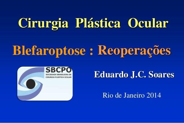 Cirurgia Plástica Ocular Reoperações Eduardo J.C. Soares Blefaroptose : Rio de Janeiro 2014