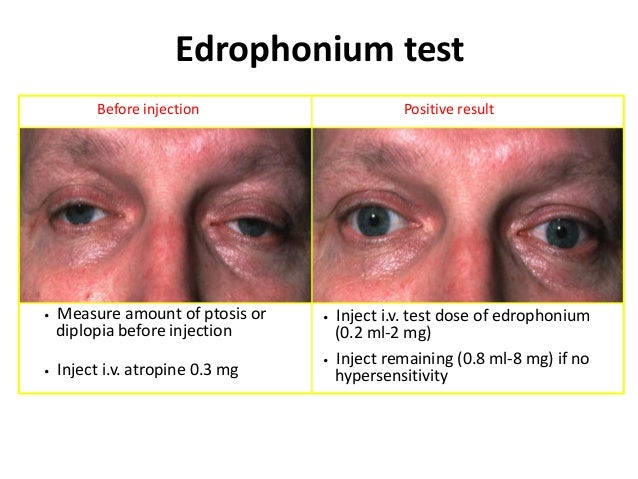 Myotonic dystrophy Facial weakness and ptosis  Release of grip difficult  Hypogonadism • Frontal baldness in males • Invol...