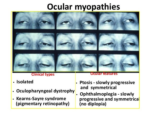 C. APONEUROTIC PTOSIS • It develops due to defects of the levator aponeurosis in the presence of a normal functioning musc...