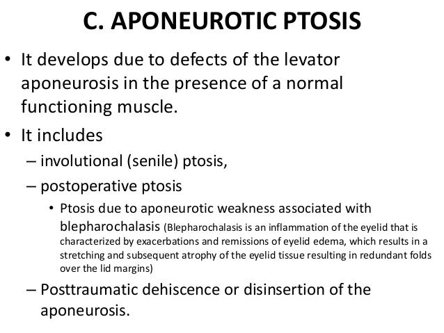 Aponeurotic ptosis  Weakness of levator aponeurosis • Causes - involutional, postoperative and blepharochalasis •  Mild  H...