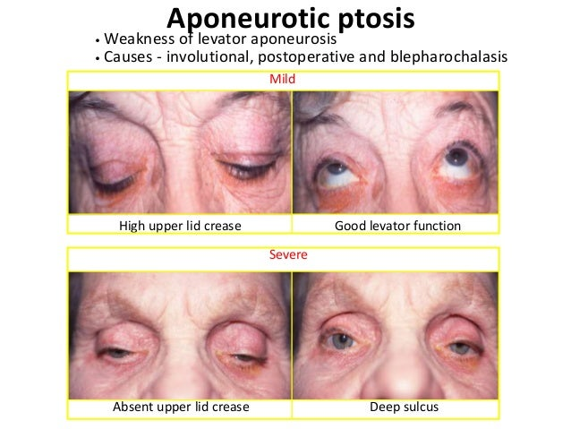 Senile ptosis • Senile or involutional ptosis is very common. Asymmetric lids and redundant lid tissue in the elderly. • T...