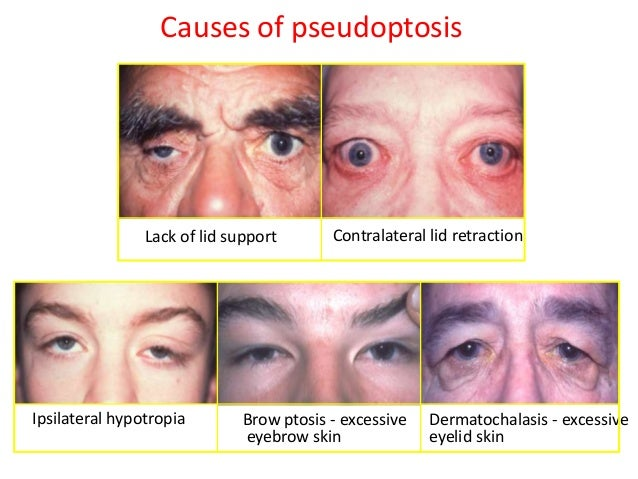 HISTORY • Ptosis – Age of onset – Duration – One/both eye – Diurnal variability  • Associated history : – Diplopia – Dysph...