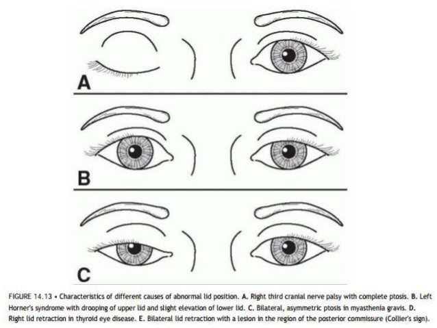 • Association with – Jaw movements – Abnormal ocular movements – Abnormal head posture  • History of – Trauma or previous ...