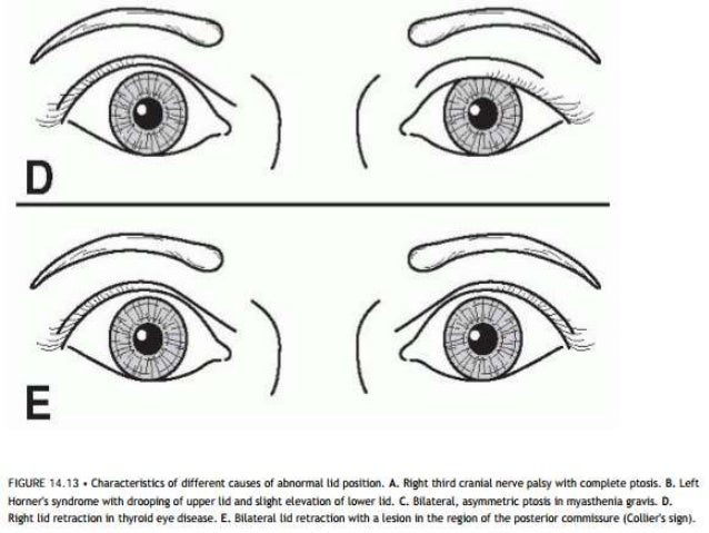 Ocular Examination: NORMAL POSITION OF EYELIDS • The normal upper eyelid in primary position – crosses the iris between th...